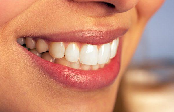 Diş kusurları özgüven kaybına neden oluyor