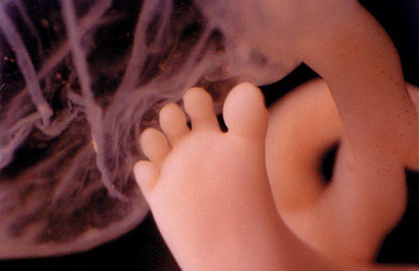 Kusursuz bebek mümkün mü?