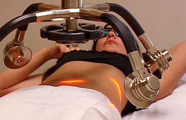 Lazer yardımlı liposuction