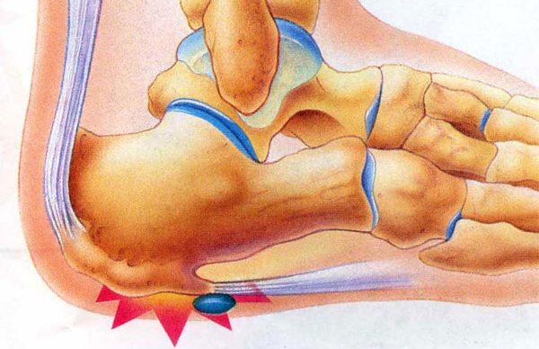 Doğru ayakkabı ile topuk dikenini önleyebilirsiniz